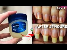 In Just 2 Minutes - How To GROW Long Strong Nails Fast At Home - GROW Long & Strong NAILS Super fast - YouTube Make Nails Grow, Grow Long Nails, Grow Nails Faster, Nail Growth Tips, Vaseline Uses, Long Natural Nails, Long Hair Tips, Nail Repair, Beauty Tips For Glowing Skin