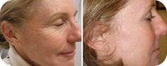 Top cosmetic dermatologist NYC and dermatologic surgeon for the best treatments for body and skin and specializing in Laser Procedures. Acne Scar Removal, How To Get Rid Of Acne, Surgery, Nyc, Medical, Cosmetics, Stylish, Manhattan, Folk