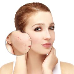 Acne can be a serious medical condition. Not only does it look bad, but it is painful and also hurts personal confidence. If you have bad acne and want to learn Home Remedies For Rosacea, Scar Remedies, Skin Care Remedies, Natural Remedies, Bio Oil Scars, Acne Scars, Chemical Skin Peel, Back Acne Treatment, Acne Scar Removal