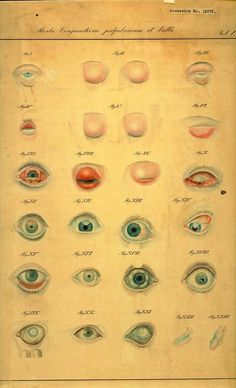 """Morbi conjunctivae palpebrarum et bulbi.""  From the James Moores Ball Ophthalmology collection."