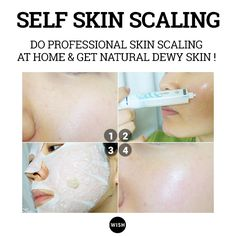 Did you know that you could do a professional skin scaling at home as well? The secret is carbonated water pack. Check the self skin scaling tip now.