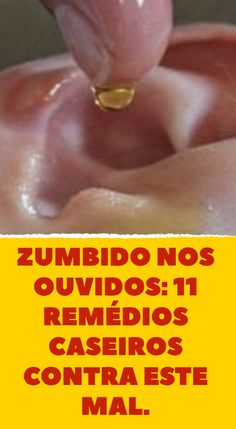 Natural Tinnitus Remedies To Stop The Ringing Home Remedies, Natural Remedies, Internal Carotid Artery, Tinnitus Symptoms, Ear Wax, Atkins Diet, Blood Vessels, Medical Conditions, The Cure