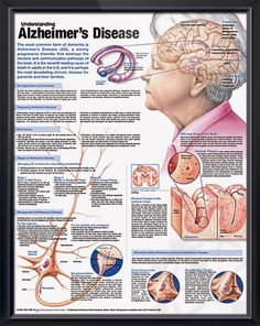 Understanding Alzheimer's Disease anatomy poster discusses the aging brain, dementia and methods of diagnosing AD for patient caregiver education. Neurology for doctors and nurses. <3