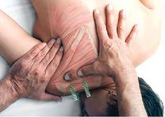 Basic Clinical Massage Therapy for Teres minor Middle deltoid Infraspinatus Latissimus dorsi