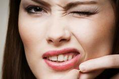 Steffany's Choice: A Quick And Easy Way To Heal Your Acne Fast!/ Una Manera Rapida Y Facil De Curar Tu Acne En Casa!