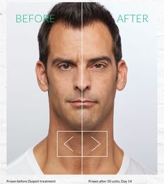 Dysport® has been proven to temporarily improve the look of moderate to severe frown lines between the eyebrows. It smooths the lines between your brows in a way that looks natural. The result? You still look like you — just smoother! Many men turn are now turning to medical cosmetic treatments for that competitive edge!