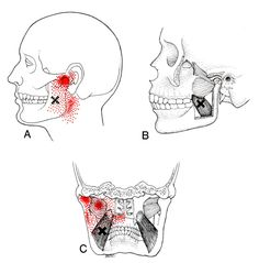 Medial Pterygoid | The Trigger Point & Referred Pain Guide