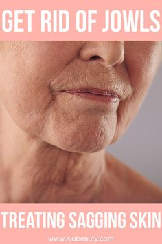 Get rid of jowls - Sagging skin on face and neck. Discover the fastest and most effective way to tighten up your cheeks and make jowls disappear for a younger looking appearance Anti Aging Tips, Anti Aging Skin Care, Natural Skin Care, Natural Health, Lip Wrinkles, Prevent Wrinkles, Anti Aging Treatments, Natural Treatments, Facial Exercises For Jowls