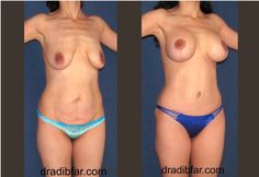 Mommy Makeover - Breast implant & Lift & Tummy Tuck
