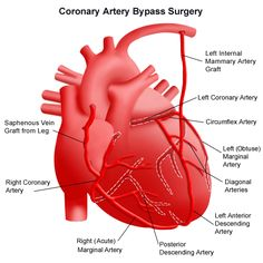 To care for patients with multiple blocked vessels, heart surgeons collaborate with interventional cardiologists to offer a hybrid approach to reestablishing blood flow to the heart muscle. Cardiac Anatomy, Medical Anatomy, Cardiothoracic Surgery, Health Chart, Health Tips, Heart Valves, Cardiac Nursing, Heart Care, Human Body