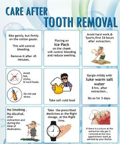 Care after #tooth #extraction