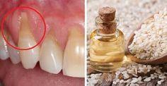 Měla jsem problém s odhalenými krčky zubů, velké bolesti a zubař mi poradil něco z přírodní lékárny. Moje dásně jsou konečně zdravé a s bolestmi mám klid! - ProSvět.cz