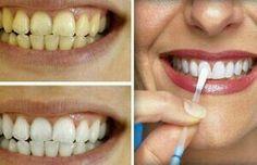 Presume una sonrisa blanca con estos #trucos para aclarar tus dientes. #TrucosCaserosParaAclararLosDientes #AclararDientes #Belleza #Sonrisa #TipsDeBelleza