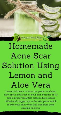 Lemon is known to have the power to whiten dark spots and areas of your skin because of its acidic properties.Citric acids reduce excess oil(sebum) clogged up in the skin pores which makes your skin clean and free from acne causing bacteria. Pimples Remedies, Dry Skin Remedies, Cellulite Remedies, Homemade Beauty Recipes, Best Face Wash, Acne Scars, Best Face Products, Organic Skin Care, Skin Care Tips