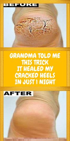GRANDMA TOLD ME THIS TRICK. IT HEALED MY CRACKED HEELS IN JUST 1 NIGHT!!! Natural Remedies For Allergies, Natural Headache Remedies, Natural Remedies For Anxiety, Health And Wellness Quotes, Health Advice, Wellness Tips, Homemade Scrub, Homemade Moisturizer, Cracked Heel Remedies
