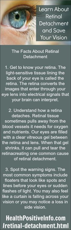 About Retina Detachment or Retinal Detachment. The warning signs of retinal detachment most common symptoms, causes, risks, treatment. Posterior Vitreous Detachment, Eye Floaters Cure, Flashes In Eye, Eye Care Center, Eye Facts, The Retina, Vision Eye, Healthy Eyes, Home Remedies
