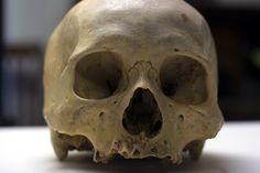 UB_Skull1_9.jpg
