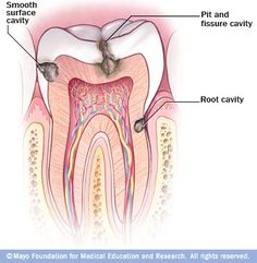 Types of Cavities: Cavities are decayed areas of your teeth that develop into tiny openings or holes. The three types of cavities are shown here. Smooth surface cavities occur on the smooth sides of your teeth, while root cavities develop on the surface over the roots. Pit and fissure cavities occur on the chewing surface of your teeth.