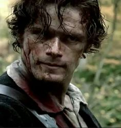 I read a comment somewhere that Outlander is much more realistic in its depiction of DIRT and grime, than Game of Thrones.  I tend to agree, although both shows seem to get it right when it comes to fight scenes.