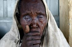 Patient with Trachoma at eye clinic, Ethiopia