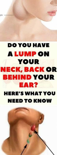 DO YOU HAVE A LUMP ON YOUR NECK, BACK OR BEHIND YOUR EAR? HERE'S WHAT YOU NEED TO KNOW #LumpUnderneathSkin #SoftLumpUnderSkin #BlackLumpOnSkin #LumpOnRightSideOfNeck Epidermoid Cyst, Lump Behind Ear, Back Pimples, Swollen Lymph Nodes, Skin Bumps, Cleveland Clinic, Under My Skin, Quites, Natural Cures