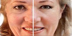 3 naturlige masker for å dempe dype rynker Eyelash Extension Course, Beauty Secrets, Beauty Hacks, Eyelash Enhancer, Best Eyeliner, Eye Liner Tricks, Les Rides, Mascara Tips, Tips Belleza