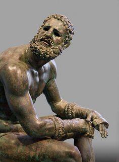 "Seated Boxer, ""The Terme Boxer"" (detail), 300-200 B.C., bronze and copper | Museo Nazionale Romano—Palazzo Massimo alle Terme, Rome"