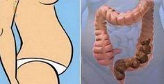 En+ayunas+solo+1+cucharada+de+esto+puede+vaciar+sus+intestinos+en+2+minutos+hasta+la+caca+acumulada+en+7+días