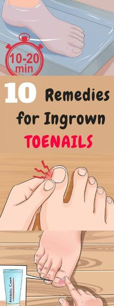 10 Remedies for Ingrown Toenails