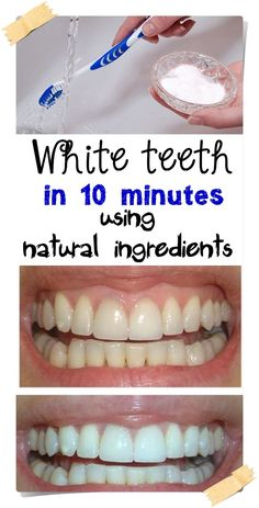 White teeth in 10 minutes using natural ingredients. White teeth in 10 minutes with natural ingredients. Health Tips For Women, Health Advice, Health And Beauty, Women Health, Home Beauty Tips, Beauty Hacks, Beauty Secrets, Diy Beauty, Teeth Health