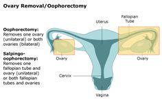 Gynecologic Specialists of Northwestern - Laparoscopic Ovary Removal