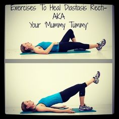 diastasis recti exercises | ... exercises: http://pregnancyexercise.co.nz/diastasis-recti-exercises