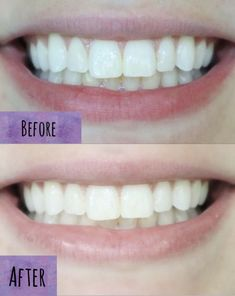 An at home teeth sensitive teeth whitening kit- Does it work? Tooth Extraction Aftercare, Tooth Extraction Healing, Teeth Implants, Dental Implants, Dental Hygienist, Tooth Decay In Children, Teeth Whitening That Works, Whitening Kit, Dentist Day