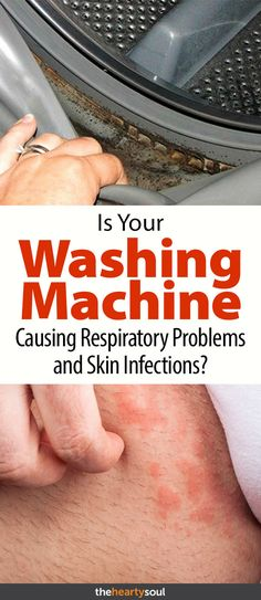 How to Remove Mold from the Washing Machine to Prevent Respiratory and Skin Infections   The Hearty Soul