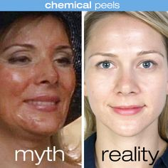 The TV version of a chemical peel (red, irritated skin) vs. the reality (a healthy glow). #truth