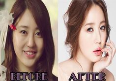 Yoon Eun Hye Plastic Surgery has totally changed her appearance. she now looks much more beautiful than before. what kind of surgery procedures has she got. Skin Care Regimen, Skin Care Tips, Beauty Hacks Skincare, Beauty Tips, Skincare Routine, Beauty Ideas, Combination Skin Care, Plastic Surgery Procedures, Skin Care Routine For 20s