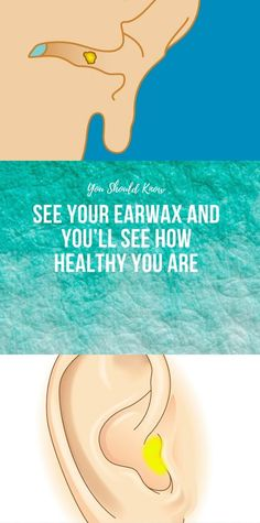 See Your Earwax And You'll See How Healthy You Are, We get requested a lot, especially by our female customers: what's the trick to getting a well-to, Yoga Fitness, Health And Fitness Articles, Physical Fitness, Health Fitness, Wellness Fitness, Easy Yoga, Definition Of Health, The Cure, Heart Muscle