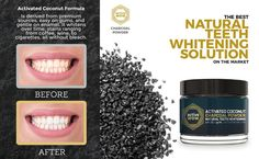 Active Wow Teeth Whitening - Charcoal Powder Natural Teeth Whitening : Beauty