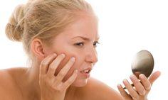 As borbulhas ou acne afectam sobretudo os jovens, mas existem muitos adultos que sofrem deste mal. Muitas pessoas com borbulhas acabam por se isolar. Neste