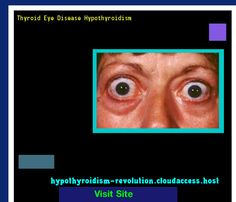 Thyroid Eye Disease Hypothyroidism 101907 - Hypothyroidism Revolution! Hypothyroidism Revolution http://hypothyroidism-revolution-h.blogspot.com?prod=XinJihxC