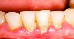 Prenez-en une cuillère à soupe par jour pour sauver vos dents - Éliminez la plaque de façon simple et naturelle