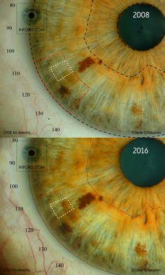 Aumento de Mancha en la Zona Topográfica del hígado en el iris derecho. Secuencia 2008 a 2016. #iridología #iridology #iridologie ©Javier Echavarren