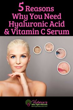 How To Even Skin Tone Naturally - 5 Reasons Why You Need Hyaluronic Acid & Vitamin C Serum. Stop the frustration! End dark spots and more with these tips! Ma Baker, Tighten Stomach, Banana Face Mask, Vitamin C Serum, Sagging Skin, Uneven Skin Tone, Tan Skin, Skin Tightening, Skin Firming