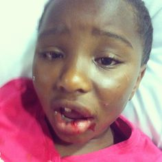 Busted mouth hospital visit missing her tooth