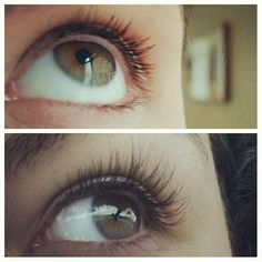 Before and after Xtreme Lashes eyelash extensions