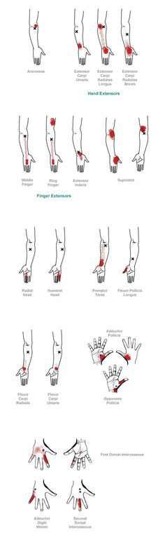 Shiatsu Massage trigger point referral pain patterns for the hand Massage Tips, Massage Techniques, Massage Therapy, Occupational Therapy, Physical Therapy, Acupuncture, Reiki, Shiatsu, Trigger Point Therapy