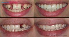 Trong các giải pháp phục hình răng thì phương pháp cấy ghép implant là giải pháp tốt nhất cho những bệnh nhân