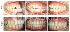 Clase III esquelética con asimetría mandibular y canteo del plano oclusal maxilar  #ortodoncia #ortodonciamadrid