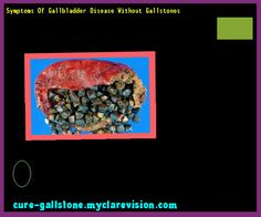 Symptoms Of Gallbladder Disease Without Gallstones 160315 - Cure Gallstone