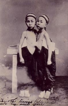 Share your asian siamese twins